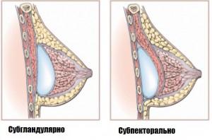 Методы постановки имплантатов