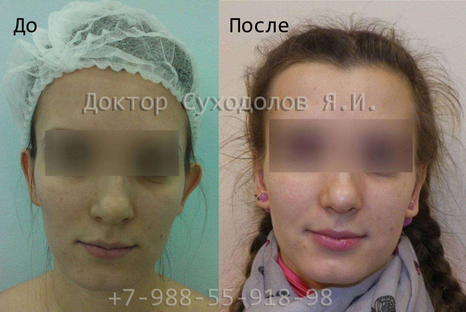 Отопластика1 Суходолов Ярослав Игоревич