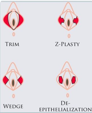 Лабиопластика в Краснодаре