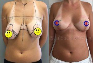 Классическая подтяжка груди с коррекцией асимметрии Краснодар