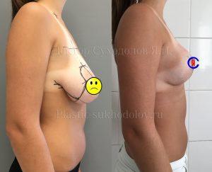 Классическая подтяжка груди с коррекцией асмметрии от доктора Суходолова Я.И.