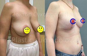 Классическая подтяжка груди Краснодар