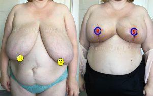 Уменьшение груди Краснодар