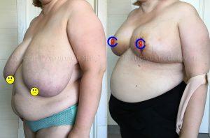 Уменьшение груди Сочи